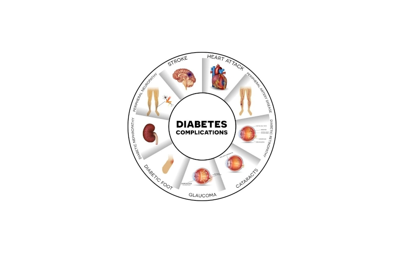 How Can Diabetes Trigger Stroke?
